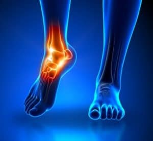 Ankle Pain x-ray