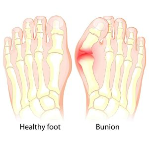Illustration bunion and healthy foot