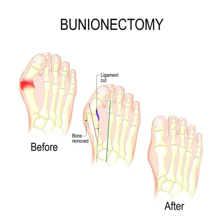 Illustration of bunion surgery bunionectomy