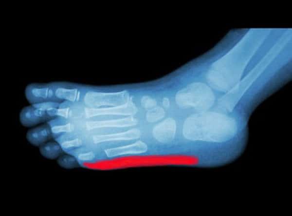 Iselin Disease Foot Pain in Child - X-Ray