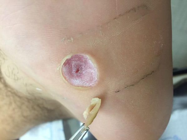 Plantar Wart Removal and Treatment Dr. Mikkel Jarman Podiatrist Phoenix