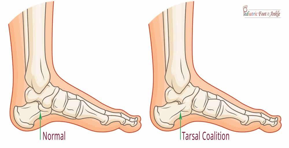 A graphic representation of tarsal coalition