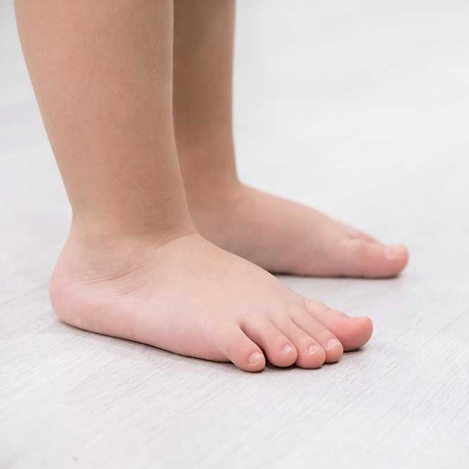 Children's flat feet example