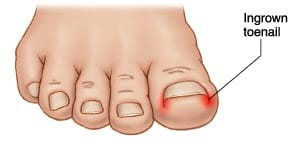 ingrown toenail diagram