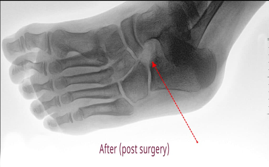 xray of a tarsal coalition after surgery